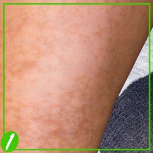 Post Inflammatory Hyperpigmentation Treatment